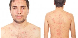 El tratamiento depende del tipo de secuelas que haya dejado el acné
