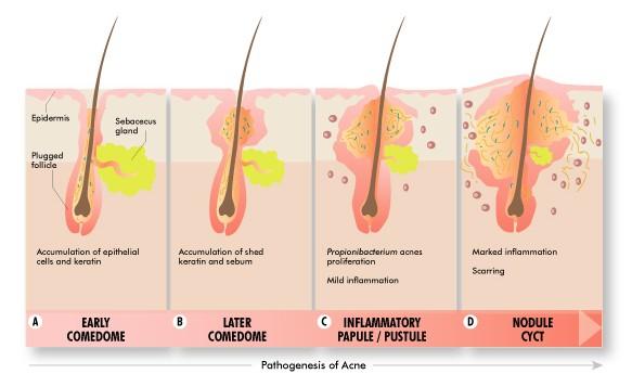 La depuración de la persona líquido por el nitrógeno