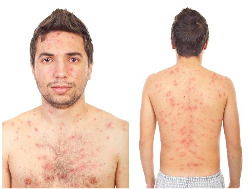 La cosmética para la persona para la piel problemática para los hombres