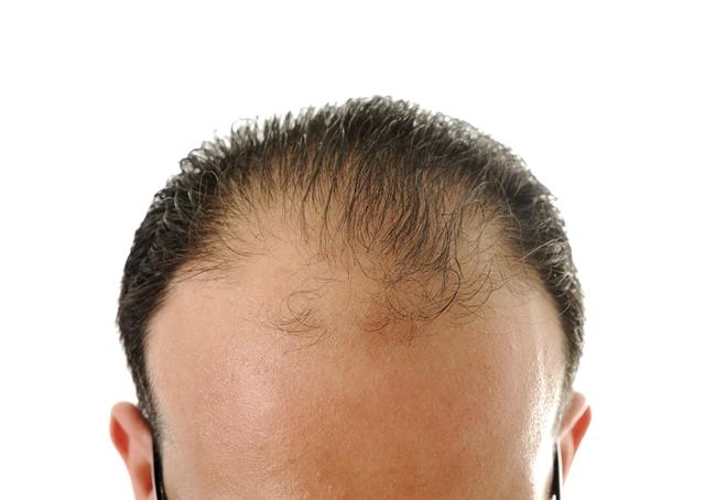 Que vitaminas no basta si cae los cabellos