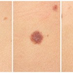 Lunares, marcas de belleza ¿qué son y cómo se forman?