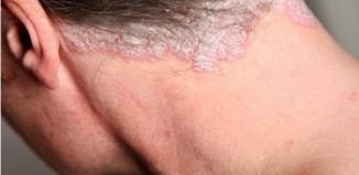 Si es posible dejar crecer a la psoriasis los cabellos