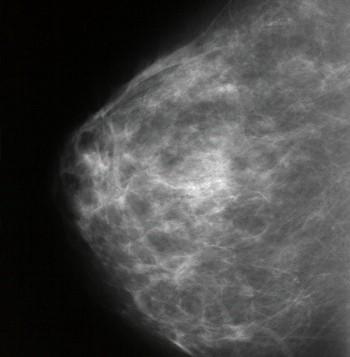 Nueva técnica capaz de descubrir el cáncer de mama