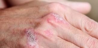 La crema para vymeni el alba a la psoriasis
