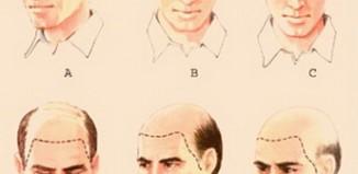 ¿Qué es la alopecia o pérdida de pelo?