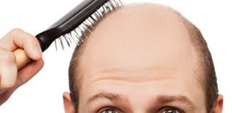 Toppik ocultar la caída de cabello es fácil y rápido