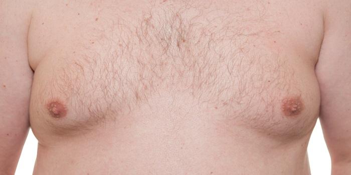 Ginecomastia cuando el pecho aumenta en el varón