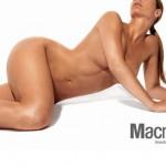 Se suspende en España el uso de materiales de relleno tipo Macrolane