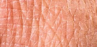Consejos para evitar la piel seca