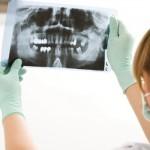 ¿Es dolorosa la extracción de las muelas del juicio? ¿Cómo se realiza?