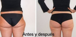 La intralipoterapia o hidrolipoclasia es un tratamiento para eliminar el exceso de grasa en abdomen, caderas y muslos