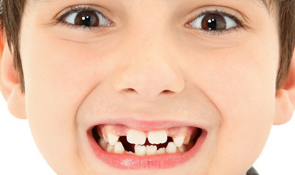 Información para personas que usan aparato dental o se plantean la posibilidad de utilizarlo.